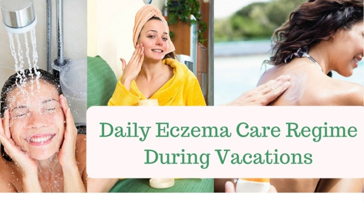 Daily Eczema Care Regime During Vacations