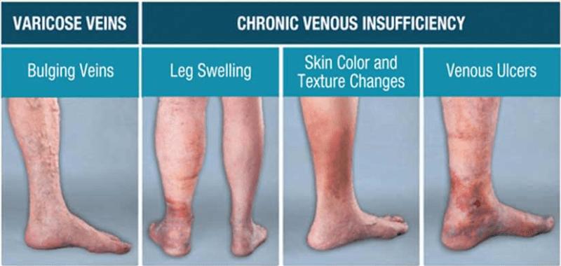symptoms of venous insufficiency
