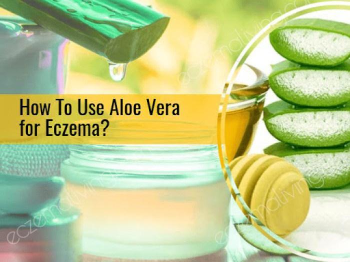 How to use aloe vera for eczema