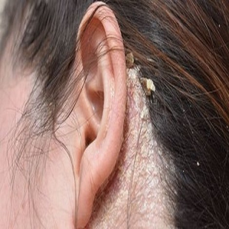 Eczema behind ear pictures
