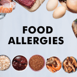 What is a Food Allergy? – Types, Causes, Symptoms & Treatments