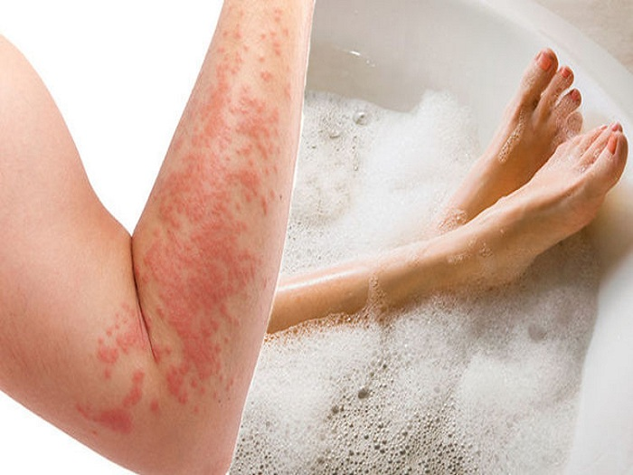How often should you shower with weeping eczema?