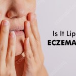Eczema on Lips - Causes, Symptoms, Treatment & Prevention Tips