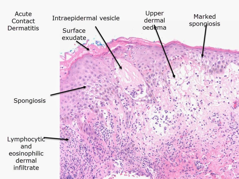 spongiotic dermatitis histology