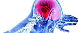 Что делать при признаках инсульта