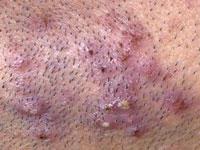 ingrown beard answers on healthtap