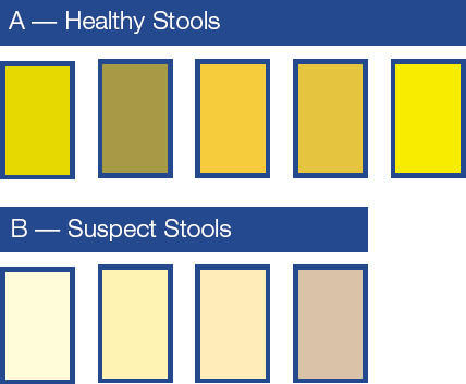 Image result for Bright or Pale Stool