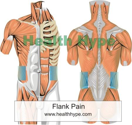 Right flank pain nausea  Things You Didn't Know