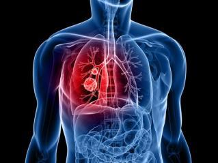 Lung nodule - Bronquiolitis obliterante Definición