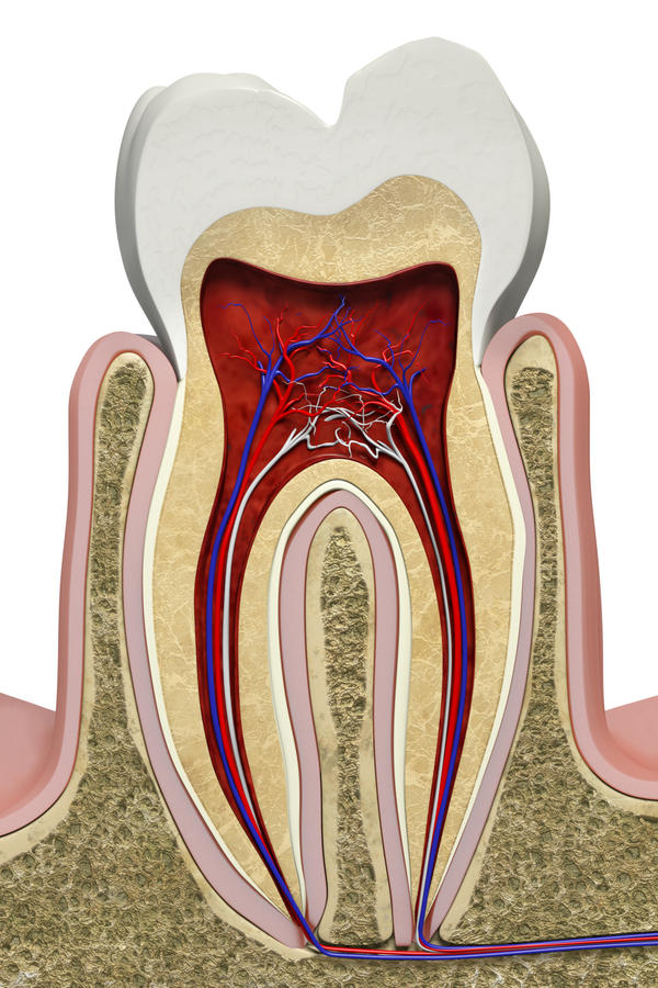 how to avoid a dry socket form tooth pulled