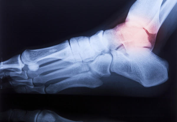 Ankle pain worse at night - Things You Didn't Know