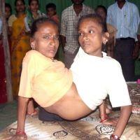 Inilah Manusia Laba-laba dari India