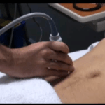 Appendicitis:  It isn't all about the size
