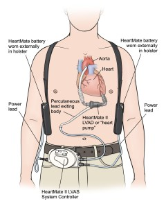 LVAD low res labeled