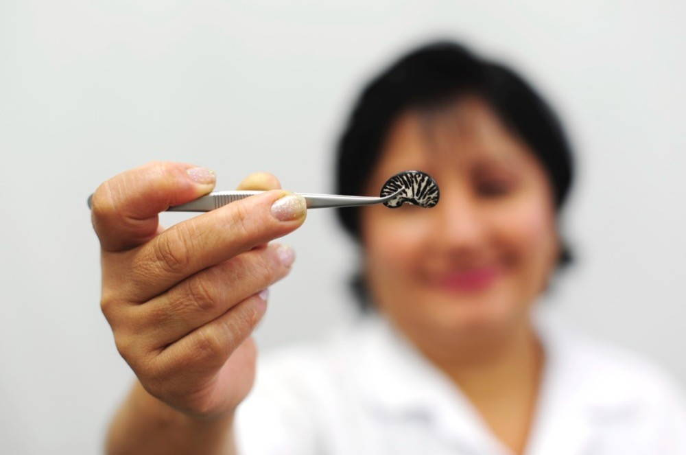 A woman's face is out of focus in the background as, in the foreground, her hand proffers a tweezer holding one intricately patterned black and white bean.