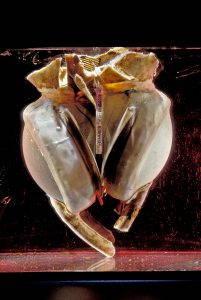 A photograph of an artificial heart