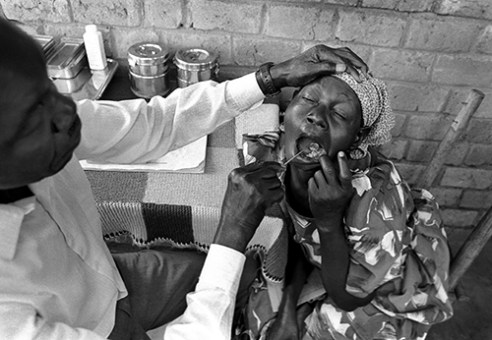 Dental care at a clinic for people displaced by civil strife and famine in northern Uganda, 1992.
