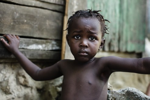 Child Young girl suffering from a variety of illnesses.