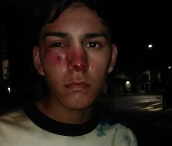 Con tres fracturas en su rostro resultó adolescente que recibió impacto de bomba lacrimógena lanzada por FFEE de Carabineros
