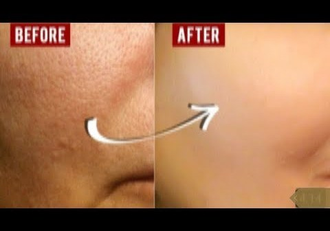 TRUST ME ON THIS GET RID OF LARGE OPEN PORES WITH THIS STRONG PORES TREATMENT