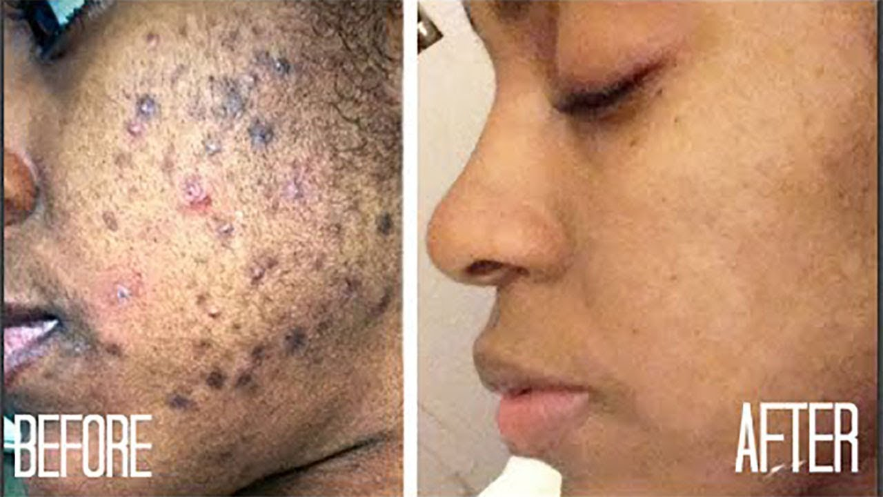 In 3 Days Remove Dark Spots Black Spots Amp Acne Scars With