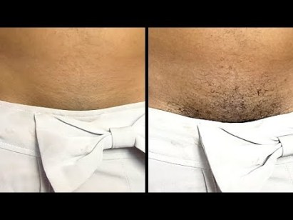 DONT SHAVE AGAIN REMOVE PUBIC HAIR INSTANTLY PERMANENTLY