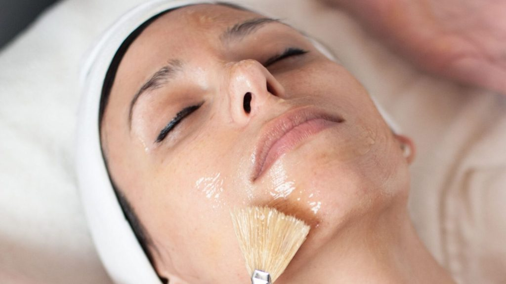 best facials for acne