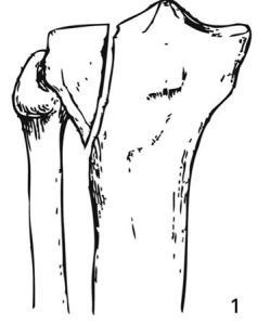 Schatzker 1