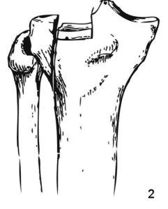 Schatzker 2