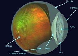 Optomap Image 1