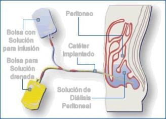 dialisis peritoneals