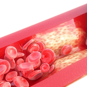 Calcificación Vascular Por: Brian Mariños