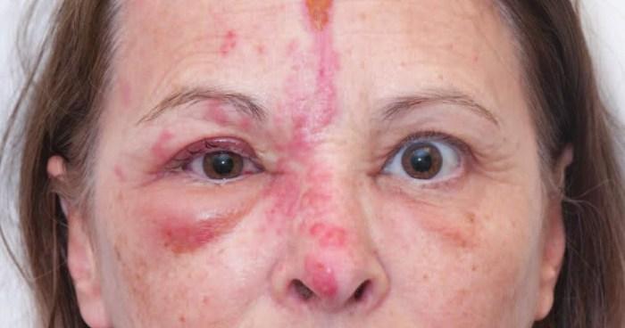 Herpes Zóster: conheça mais sobre a doença e previna-se