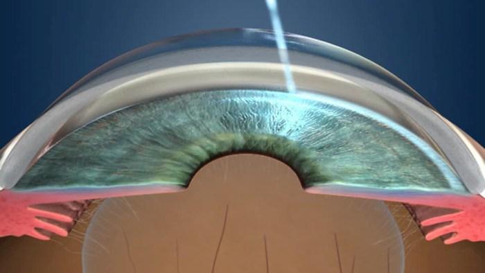 Utilização de laser para o tratamento do glaucoma como primeira opção
