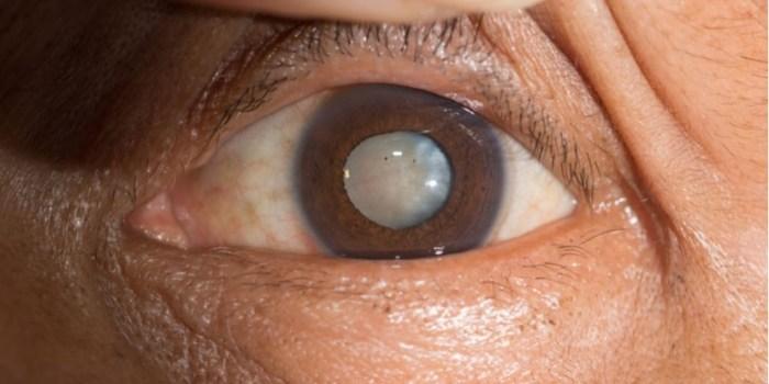 A catarata corresponde a 48% dos casos de cegueira no Brasil