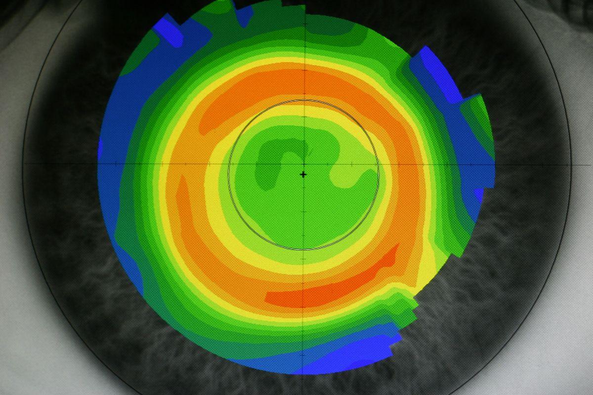 Cornea-tras-Ortok | Ortoqueratología | en Educando tu mirada