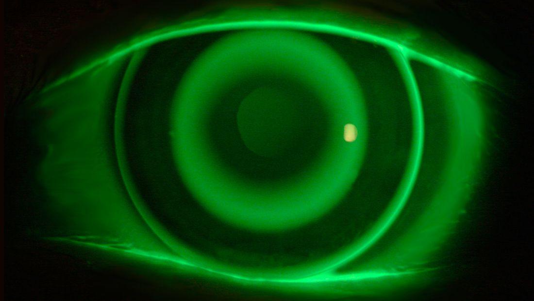 ortoqueratología | en Educando tu mirada