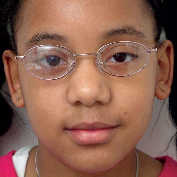 Filtros Bangarter | Ambliopía u ojo vago | en Educando tu mirada