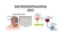 EEG Full-Form | What is Electroencephalogram (EEG)