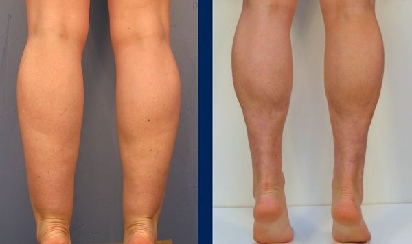 How To Get Rid Of Swollen Ankles Fast Healthy World