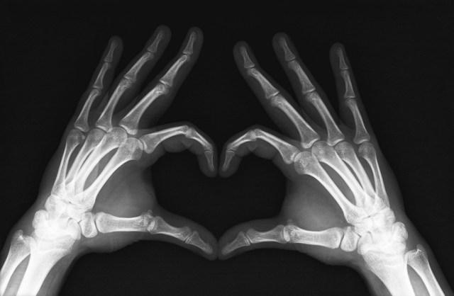 Päeva leid: röntgenhoitaja