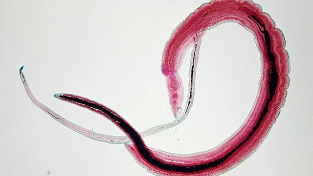 Brrr… Briti mees peaaegu suri pärast seda, kui parasiit ronis ujumise ajal tema peenise sisse