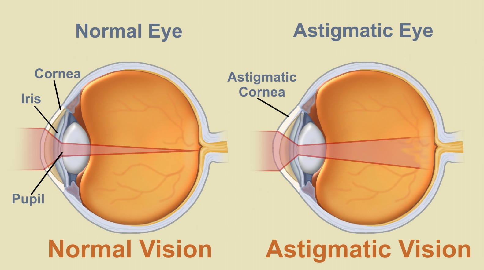 Astigmatism Common Eye Problems