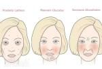 Comment  la nourriture peut-elle affecter la peau