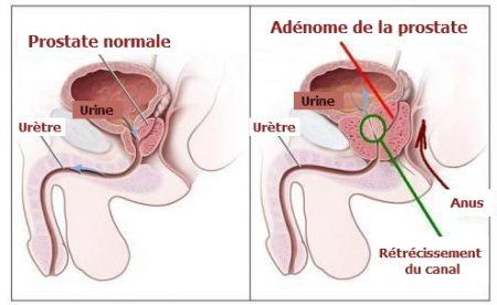 la prostate, toucher rectal , l'hyperplasie bénigne de la prostate, cancer de la prostate, cancer chez l'homme,