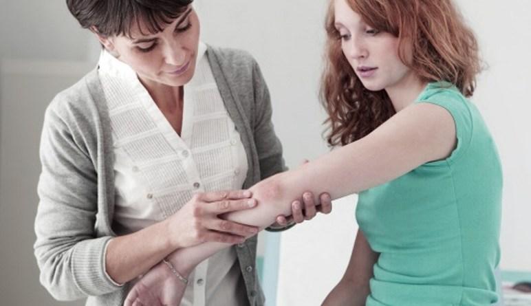 psoriasis, le psoriasis, von zumbusch, maladies de la peau