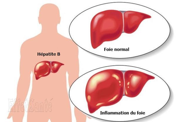 hépatite B, maladies du foie, hépatite, l'hépatite