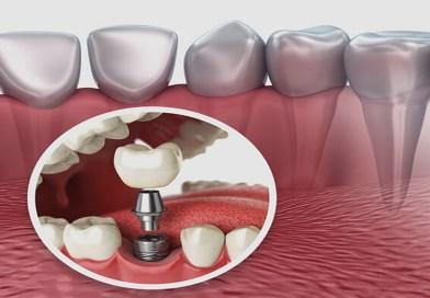 L'implant dentaire: la contre-indication
