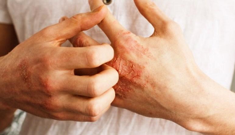 le psoriasis, les causes du psoriasis