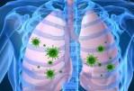 La pneumonie. De quoi s'agit-il?